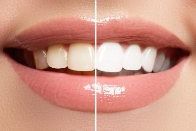 Blanchiment dentaire Nimes - L'atelier de Léa