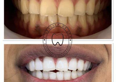 Blanchiment dentaire à Nîmes - L'atelier de Léa