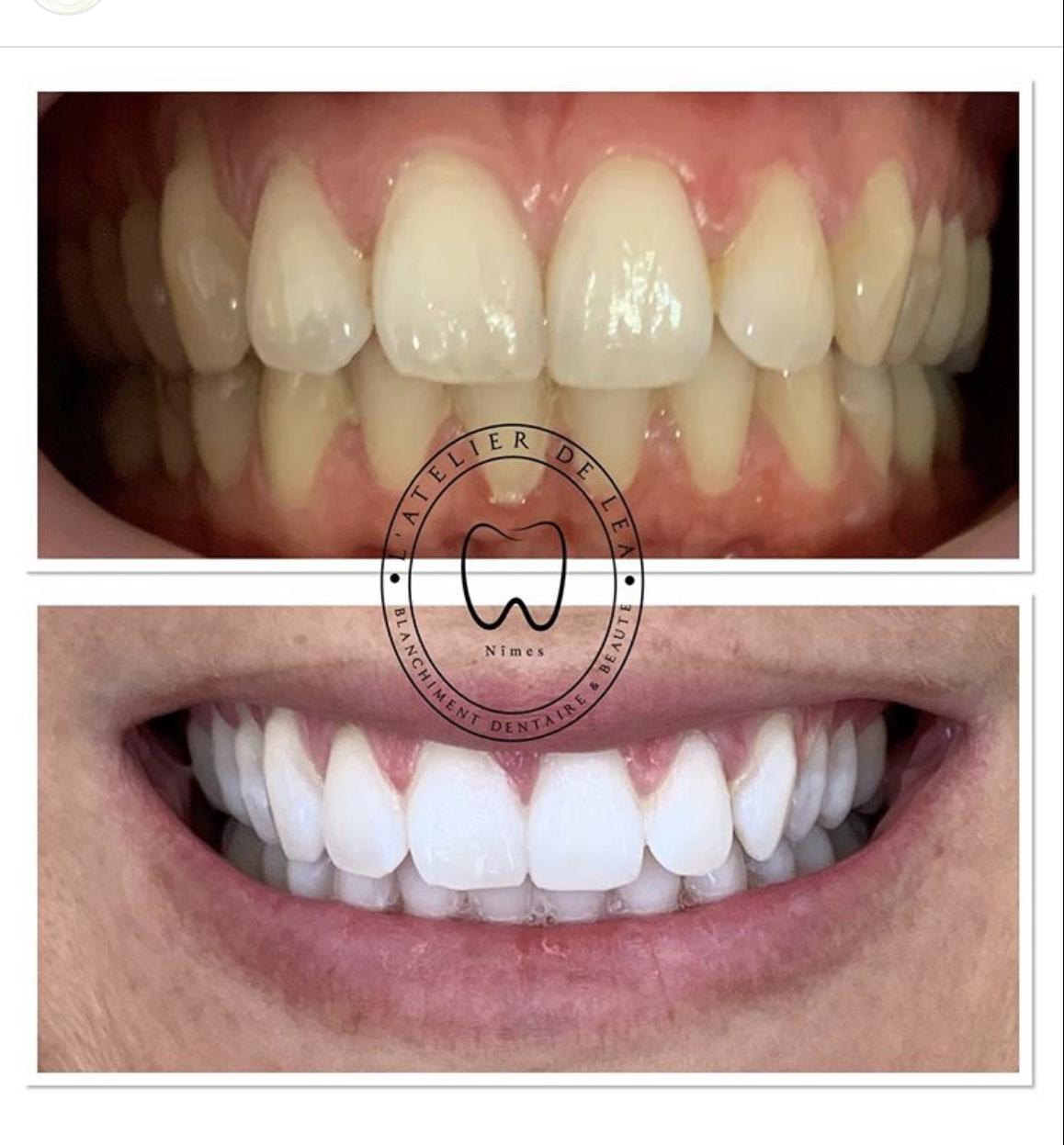 Blanchiment dentaire à Nîmes - L'atelier de Léa (9)